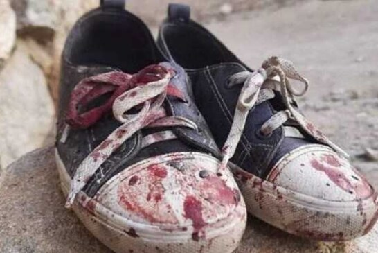 مرثیهای برای مردم مظلوم افغانستان/ نبینم کودک زیبای افغان را بدون پا ( نغمه مستشار نظامی )